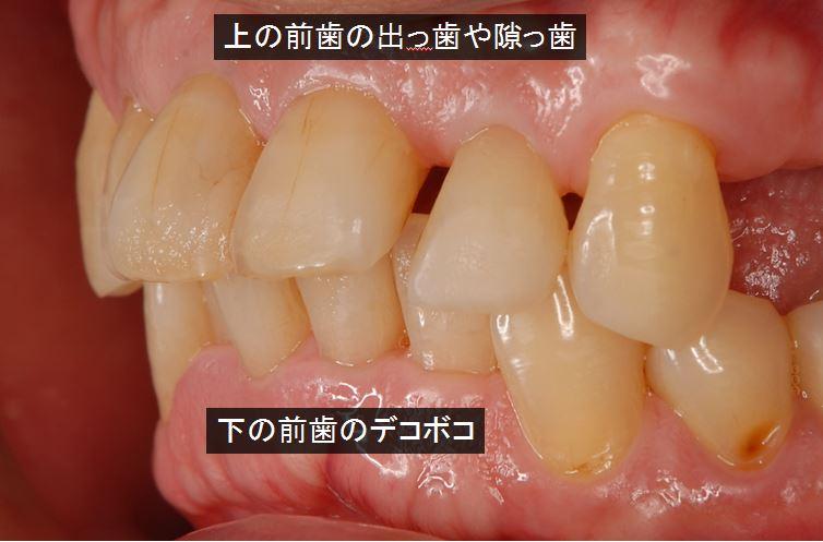 歯周病と歯並び