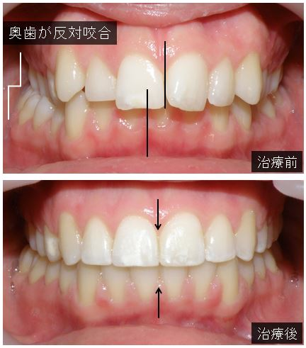 奥歯の反対咬合